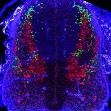 Coupe transversale de tube neural murin à E11.5. Immunomarquage Pax2 en rouge (neurones dorsaux inhibiteurs), Tlx3 en vert (neurones dorsaux excitateur), Pax7 en bleu (progéniteurs dorsaux).