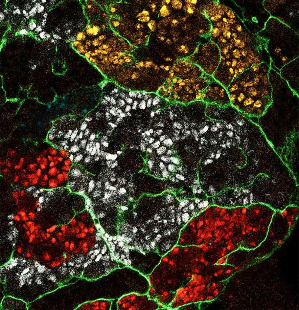 Clones de cellules souches nerveuses tumorales